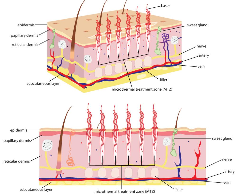hight resolution of skin diagram how laser works on skin