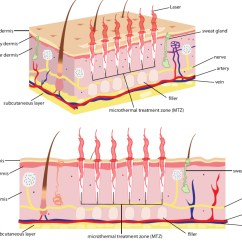 Working Of Laser Printer With Diagram Digital Rpm Meter Wiring  Lasers Skin Treatments The Facts And Experts Advice