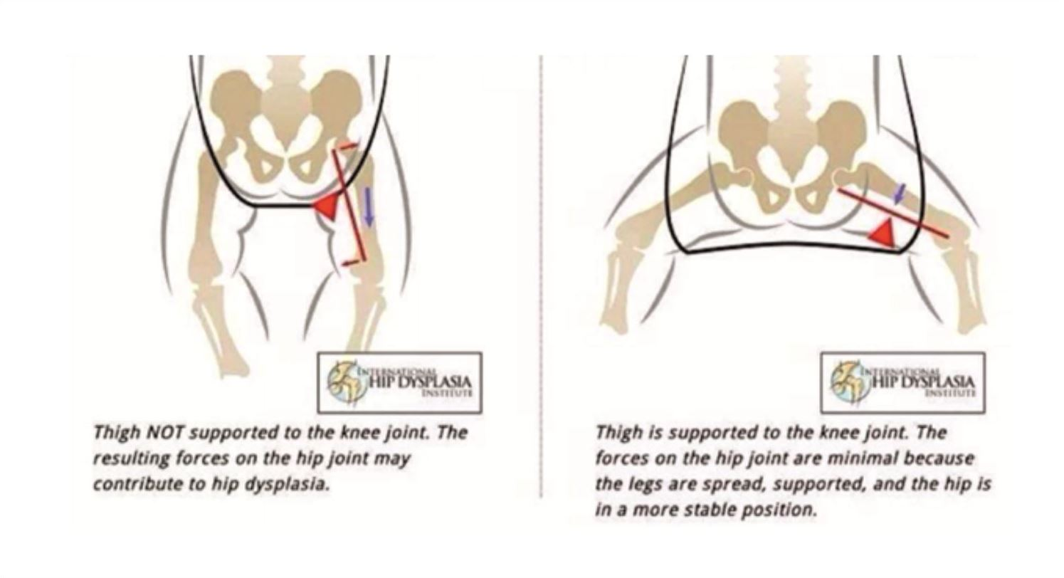 hight resolution of hip dysplasia is the medical term for the instability and free movement of the hip joint this is caused by the abnormal development of the femoral joint in