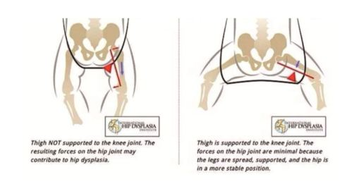 small resolution of hip dysplasia is the medical term for the instability and free movement of the hip joint this is caused by the abnormal development of the femoral joint in