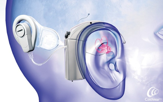 cochlear_implants_main