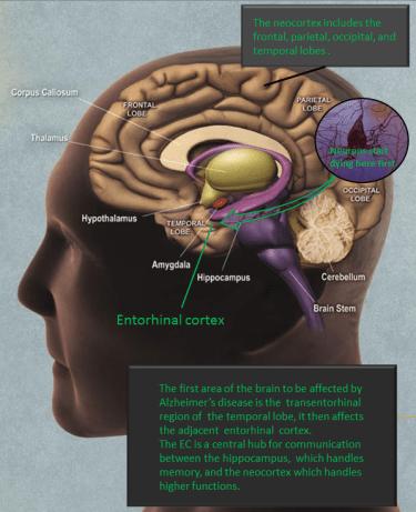 Alzheimers_entorhinal_cortex