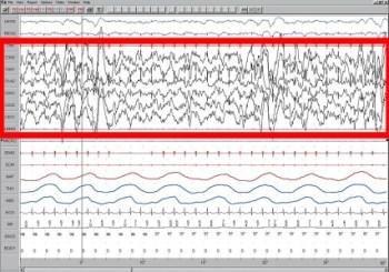 Sleep_EEG_Stage_4