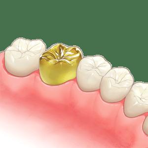 crown(1)