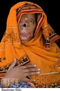 Bashiran-Bibi-acid-attack-victim