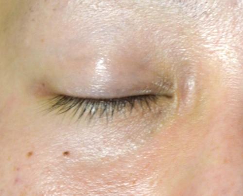 眼瞼下垂の手術大変