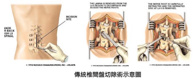 傳統與微創椎間盤切除術比較