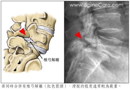 椎間滑脫如何診斷?