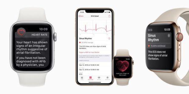 italiamac ecg iphone 620x310 Da questa sera disponibile watchOS 5.1.2 che integra lECG su Apple Watch Serie 4