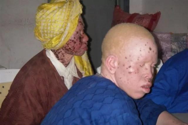 Malawi albini