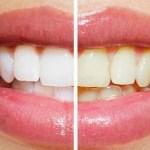 Clareamento Dental Caseiro ou a Laser: Descubra o melhor método pra você