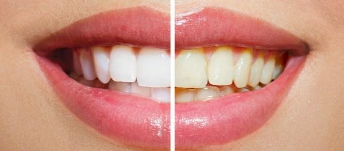 Resultado de imagem para clareamento dental