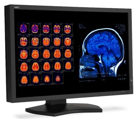NEC MultiSync MD301C4 IPS Medical Diagnostic Display 1