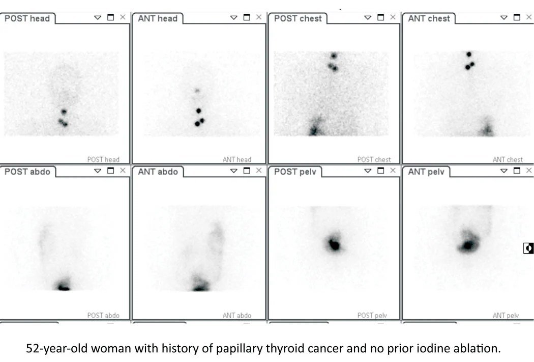 Current Advances in Targeted Radionuclide Therapy