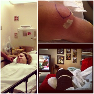 June 2012 Left Knee Surgery