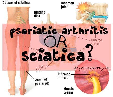 Sciatica? Psoriatic Arthritis Flare Up in My SI Joint??