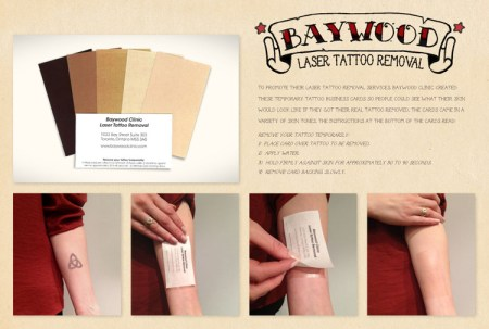 baywood clinic laser tattoo removal 450x303 Create Name Card ไอเดียทำนามบัตร