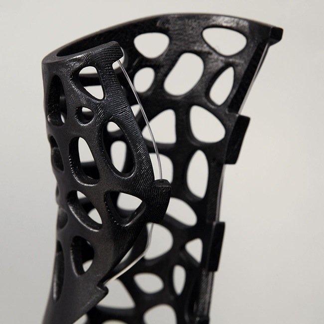 25570428 185425 เฝือก 3D Print พร้อมระบบอัลตร้าซาวด์ช่วยรักษา..ดูดี รู้สึกดี หายเร็วขึ้น