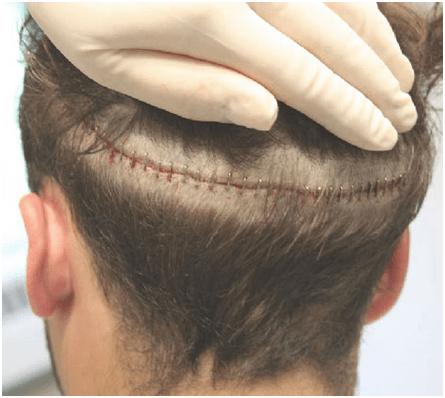 ภาพแผลหลังปลูกผม แบบเก่า Follicular Unit Hair Transplantation or Strip Method