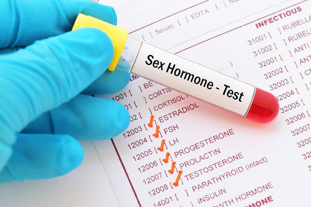 生育荷爾蒙檢查