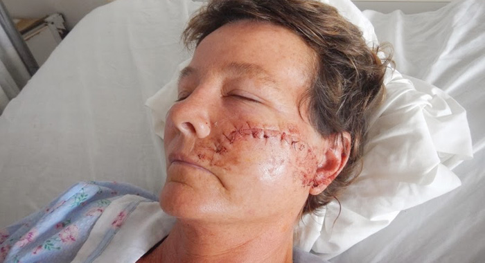 This photo, posted on the Internet, shows the injuries Tina Curtin suffered during the Oct. 3 attack.