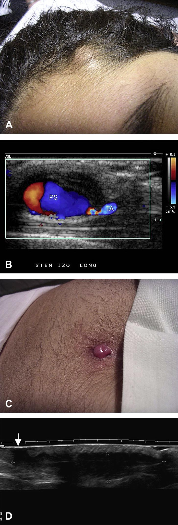 Pilonidal Cyst External