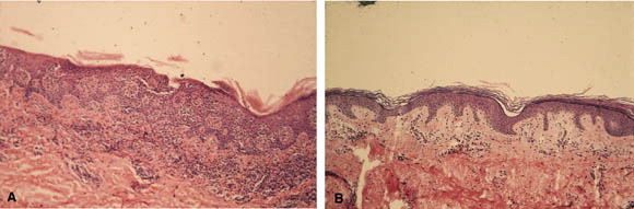 Stage Fungoides Early Mycosis