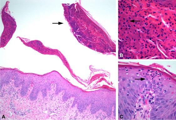 Perianal Streptococcal Infection Precipitating Pustular