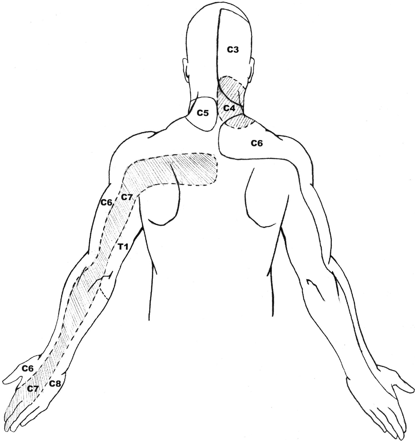 C7 8 Nerve Root Compression