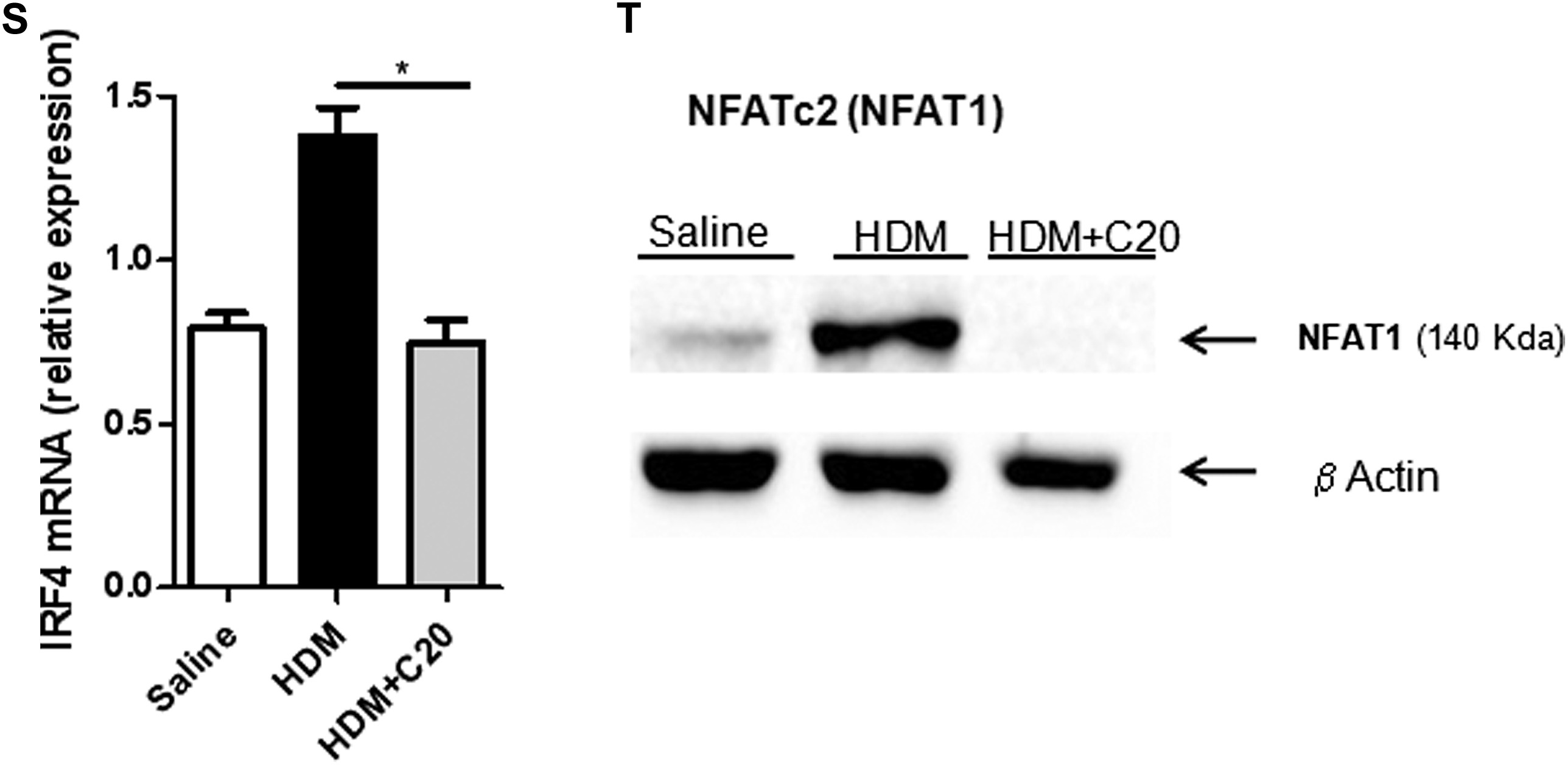 Protein Kinase C Controls Type 2 Innate Lymphoid Cell And