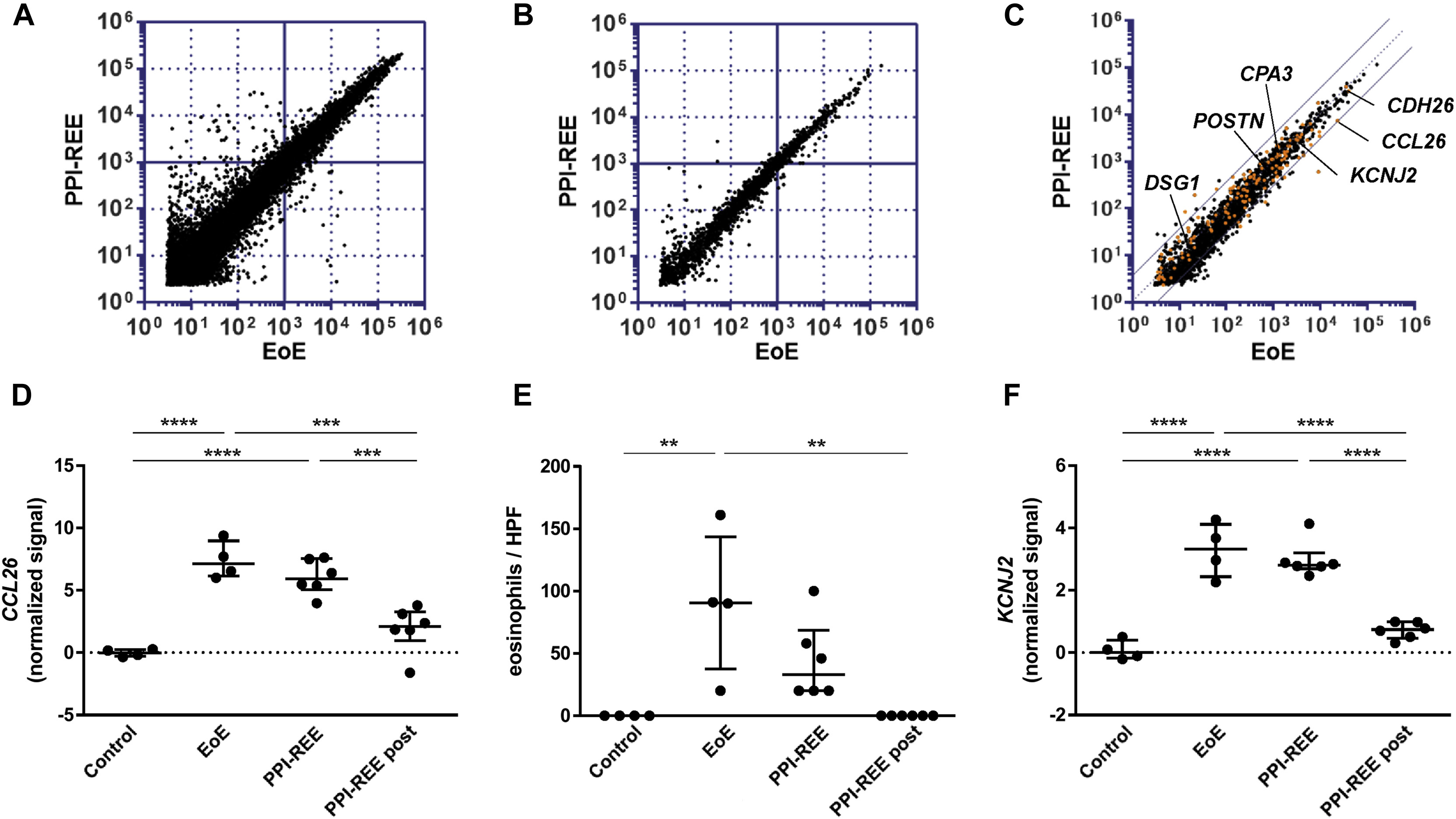 Eosinophilic Esophagitis Versus Proton Pump Inhibitor