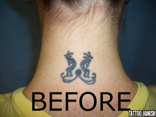 Tattoo Removal Specialist in Manhattan NYC - (917) 363-2635