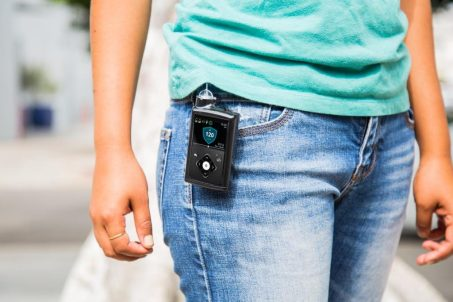 Artificial Pancreas Approved by FDA | Jacksonville Magazine