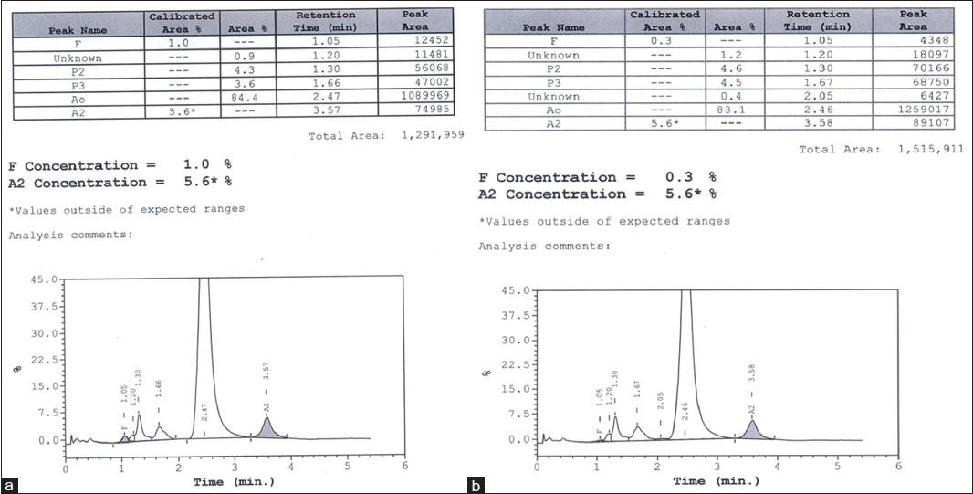 Transfusion associated unknown peak on HPLC chromatogram