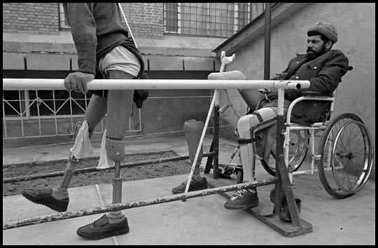 James Nachtwey Afghanistan prosthetic limb man