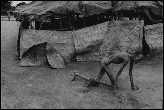 Sudan 1993 - Víctima de la hambruna en un centro de alimentación - James Nachtwey