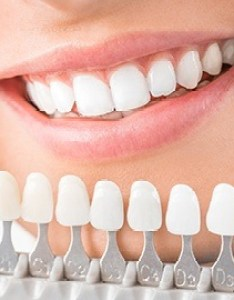 Closeup of teeth compared with tooth color chart also ann arbor whitening cosmetic dentist james olsen dds rh jamesolsendds
