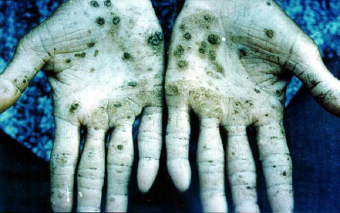 Fluoride Contaminants