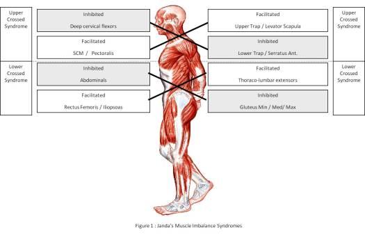 upper lower crossed syndrome zespol posturalny zespol skrzyzowania gornego