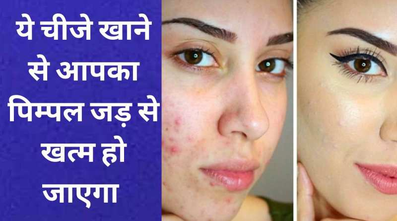 this food will remove pimple from your face