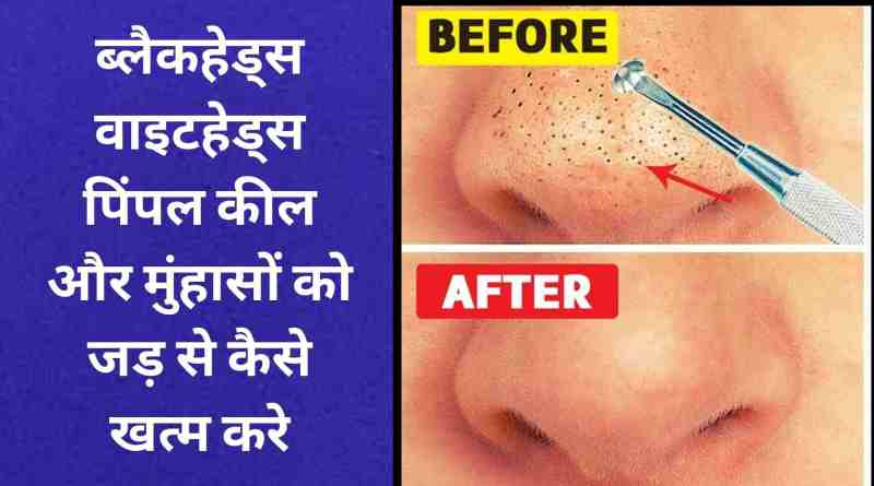 How to get rid of blackheads whiteheads and acne?