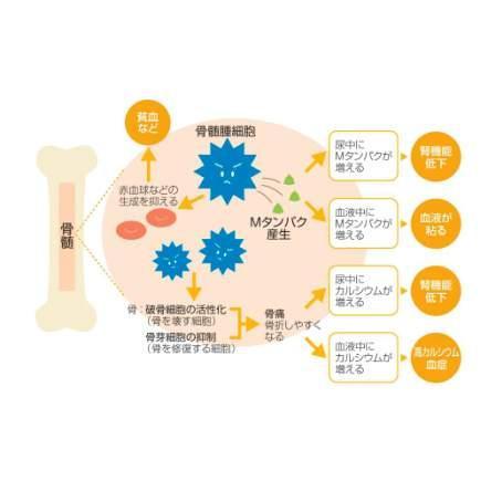 多発性骨髄腫について | ヤンセンファーマ株式會社