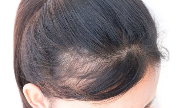 أسباب تساقط الشعر عند المرأة