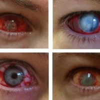 Eye Trauma Contact Lenses