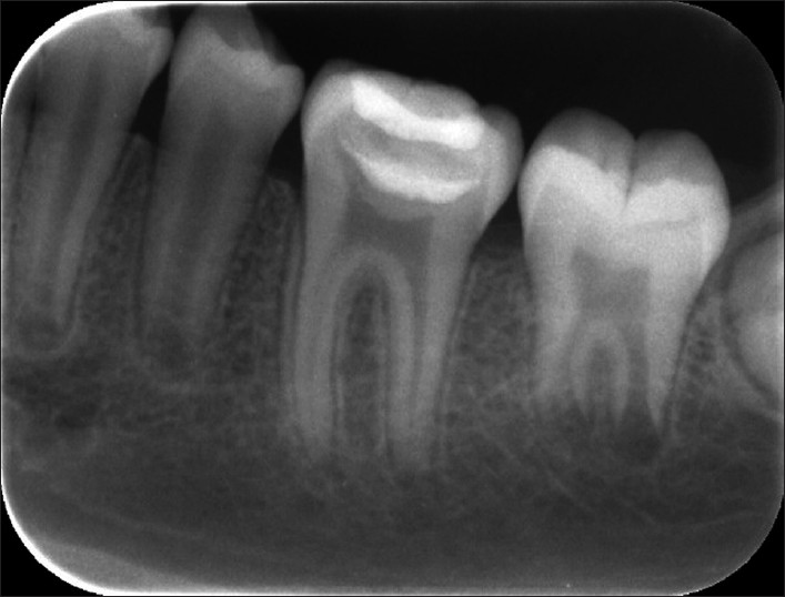 Pulpal Therapy For Primary And Young Teeth Indirect Pulp Therapy In A Symptomatic Mature Molar Using