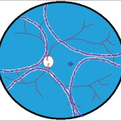 Diagram Of The Left Eye Leviton 3 Way Dimmer Wiring View Image Figure Schematic Fundus Depicting Total Exudative Retinal Detachment