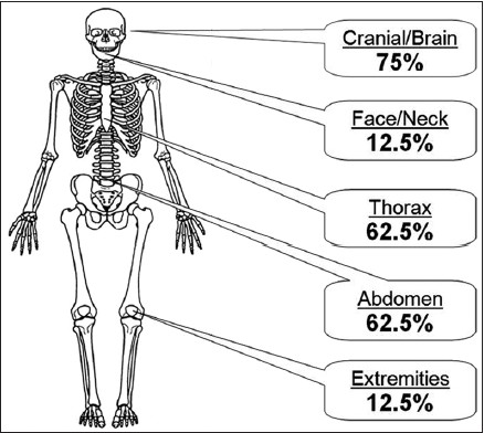 Fractures of the occipital condyle clinical spectrum and