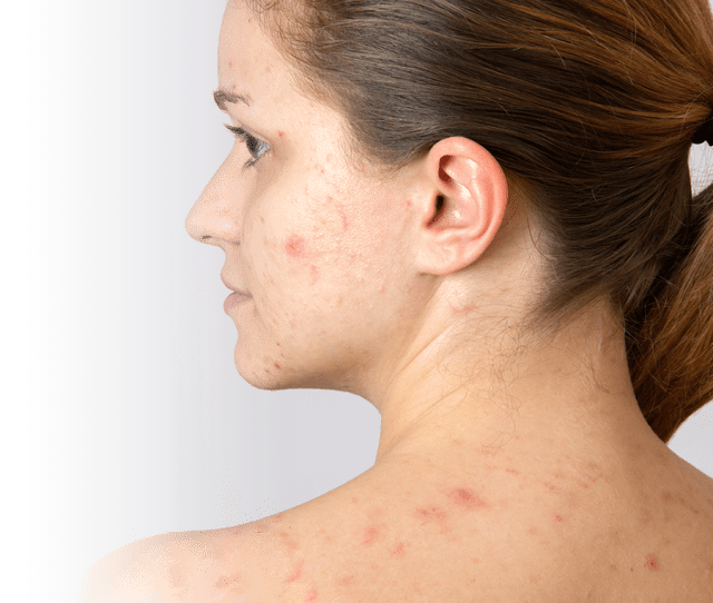 Solutions To Get Rid Of Adult Acne