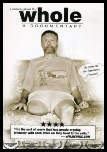 The cover of Whole: A Documentary, featuring a bearded amputee sitting on a couch