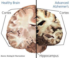 health vs unhealthy brain